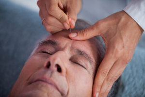 Acupuncture for stroke recovery