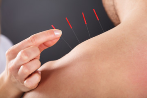 acupuncture in Chandler for shoulder and neck pain