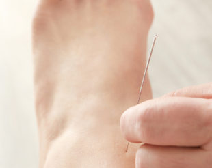 Acupuncture for Injuries